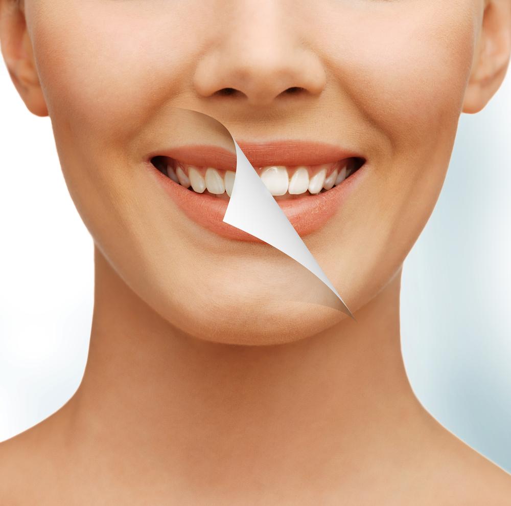 Cand ar trebui sa recurgi la albirea dintilor